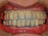 最終ブリッジの口腔内試適の写真