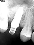 仮歯装着(5か月後)レントゲン画像