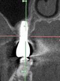 CB・CT のよる骨造成のチェック(1年後)のレントゲン画像