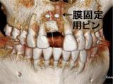 CB・CT(GBR後10か月)右上中切歯部(3D)