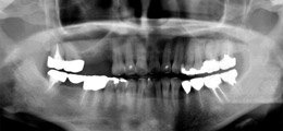 右上3臼歯欠損症例術前のレントゲン