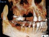 CB・CTによる術前診査画像