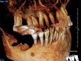 手術前の写真