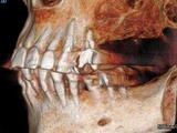 CB・CTによる骨造成の確認3D