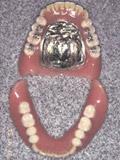 インプラント義歯IODを装着写真