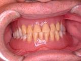 メンテナンス(13年後)人工歯着色顕著