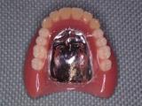 上下とも新義歯写真(13年後)