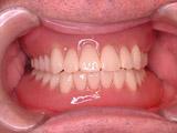 上下とも新義歯装着(13年後)写真