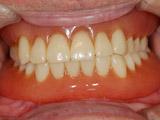 メンテナンス(21年後)新義歯装着写真