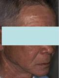 下顎にインプラント義歯、上顎に通常の総義歯を装着写真