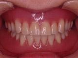 作製済みの義歯にクリップを付けてIODを口腔内に装着する写真