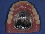 上顎にバーを使ったインプラント埋入後5か月の写真