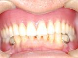 上顎インプラント義歯装着後写真