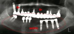 上顎にブリッジ 、下顎にインプラント義歯装着レントゲン画像