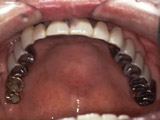 上顎にブリッジ 、下顎にインプラント義歯装着写真
