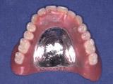上顎は2本抜歯になり、インプラント義歯に変更