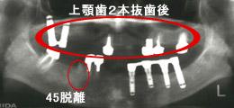 上顎は2本抜歯になり、インプラント義歯に変更レントゲン