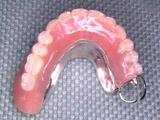 インプラントを4本追加埋入して、インプラント義歯IARPDに変更