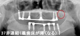 下顎は2本抜歯になり、2本インプラントを追加埋入し、インプラント義歯IODを装着レントゲン