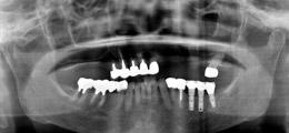 バー(インプラント)とエーカースクラスプ(天然歯)を使用した上顎 IARPD症例レントゲン画像