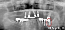 上顎にインプラント義歯IARPDを装着レントゲン画像