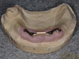上顎にインプラント義歯IARPDを装着