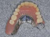 インプラント義歯IARPDの破折