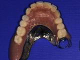 バーからロケーターに替えてインプラント義歯をつくり変えた