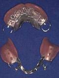 上顎にインプラント義歯 IARPD 装着レントゲン画像