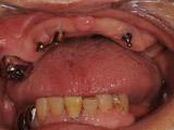新義歯IARPD装着(12年後)写真